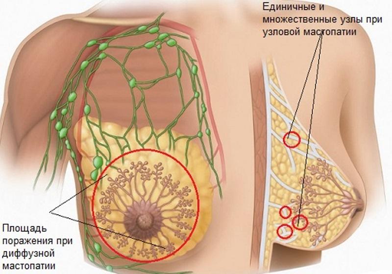 Что такое диффузная мастопатия