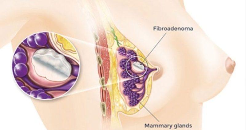 Методики лечения фиброаденомы молочной железы без операции