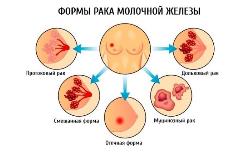 Рак груди 3 степени: прогноз, лечение и какова продолжительность жизни