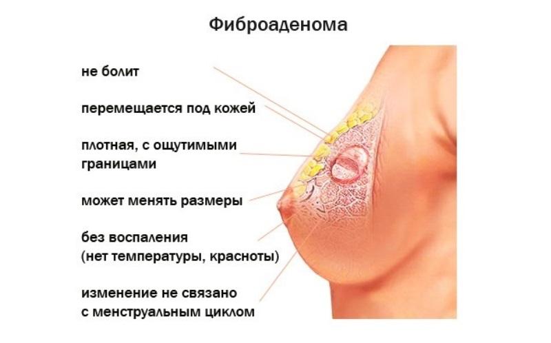 Операция по удалению фиброаденомы молочной железы