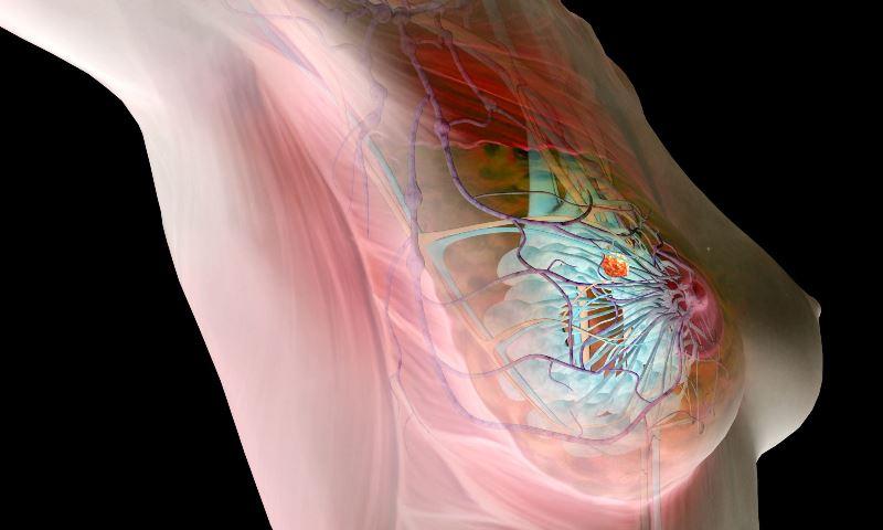 Диагностика и методы лечения фиброза молочной железы