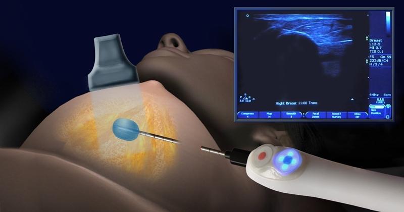 Назначения и виды пункции молочной железы