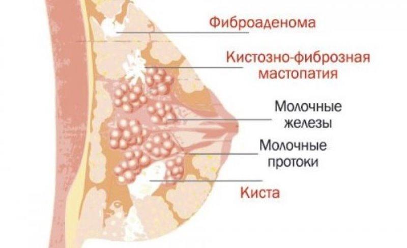 Что такое диффузная фиброзно-кистозная мастопатия