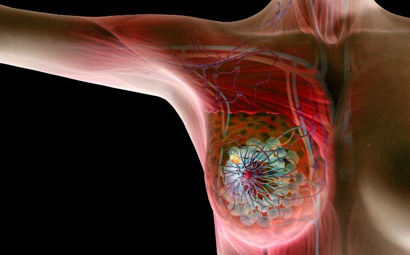 Кальцинаты в молочной железе представляют собой единичные или множественные очаги скопления солей, образующихся на участках омертвевшей ткани