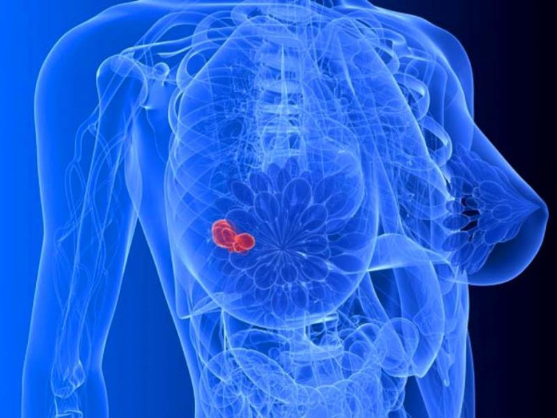 Фиброаденома молочной железы: причины, диагностика, способы лечения