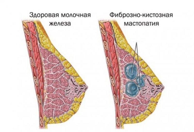 Симптомы и лечение фиброзной мастопатии