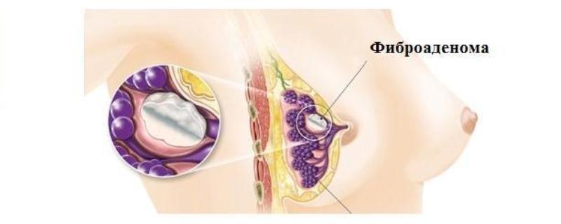 Фиброаденома молочной железы: что это такое, фиброзная аденома груди, на УЗИ у женщин, диагноз