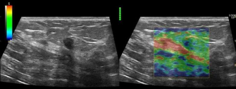 фиброаденома молочной железы что считает врач мясников способ добраться