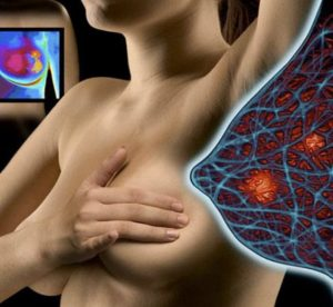 Симптомы и лечение фиброзно кистозной мастопатии