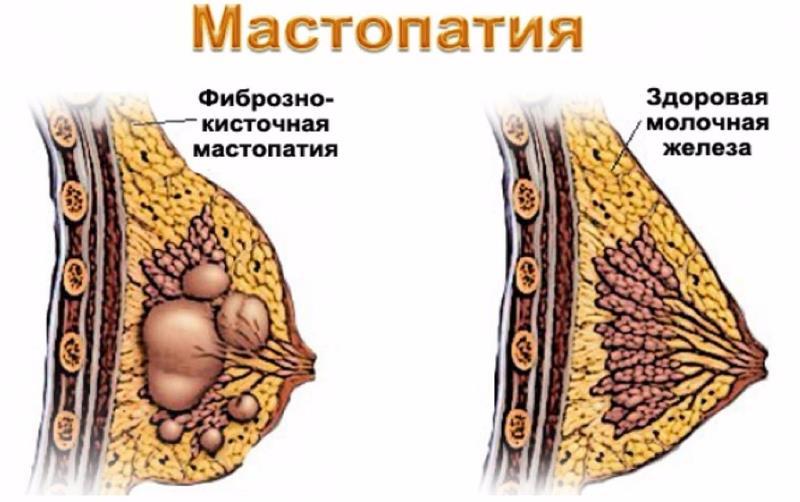 Симптомы и лечение фиброзно-кистозной мастопатии