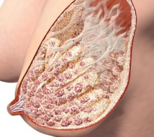 Как возникает фиброзно жировая инволюция молочных желез и нужно ли ее лечить