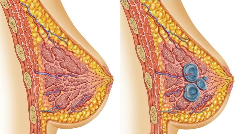 опасна ли киста в грудных железах