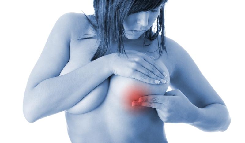 Женский мастит: описание, развитие болезни, способы лечения