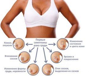 Виды и симптомы опухолей молочной железы у женщин