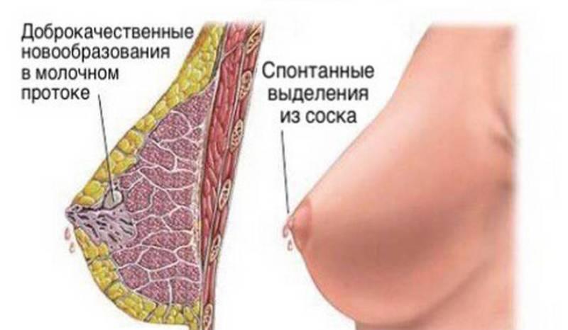Выделения из молочной железы при нажатии желтого цвета