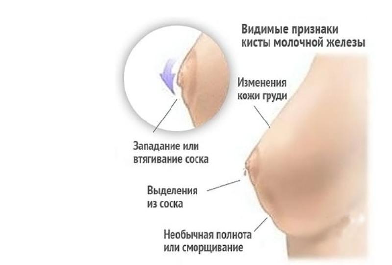 Каковы причины выделений из грудных желез при надавливании