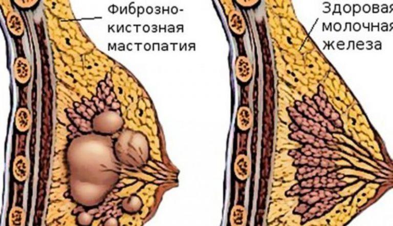 Диффузная фиброзно кистозная мастопатия: молочных желез с преобладанием фиброзного компонента, смешанная форма фкм, лечение груд