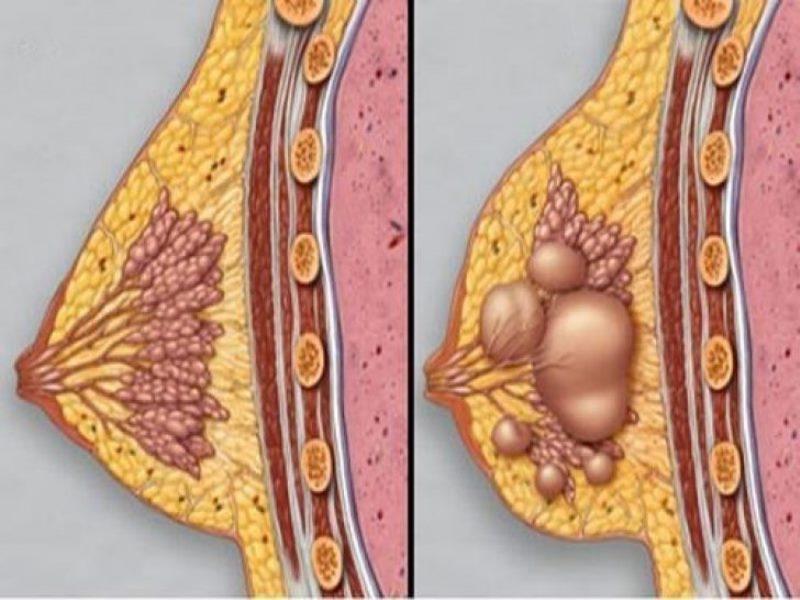 Лечение мастопатии народными средствами: домашние рецепты