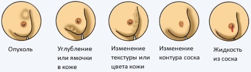 Характеристика признаков рака груди и обследование