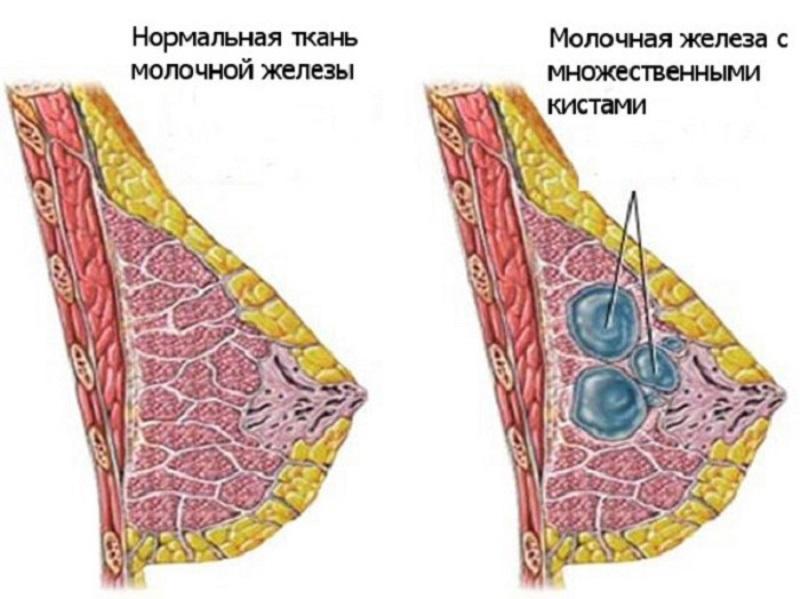 Уплотнение в молочной железе: в груди перед месячными, небольшой камень